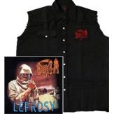 Leprosy - VEST